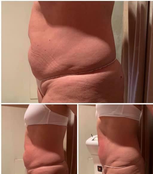 Prima e dopo il trattamento con MC1